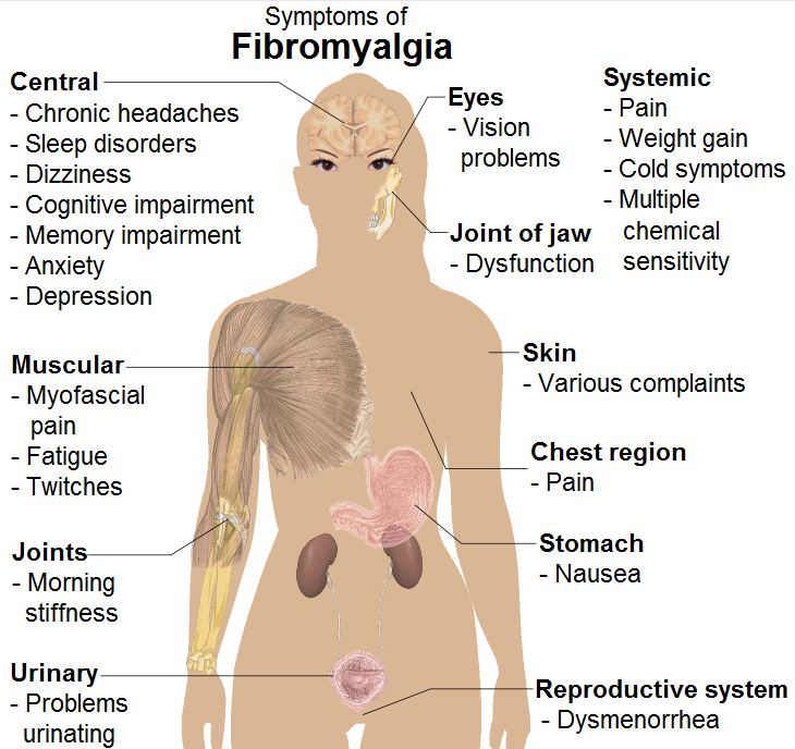 Symptoms_of_fibromyalgia
